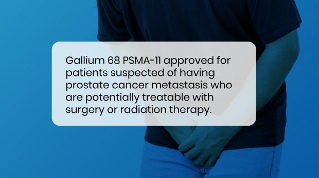 prostate cancer imaging